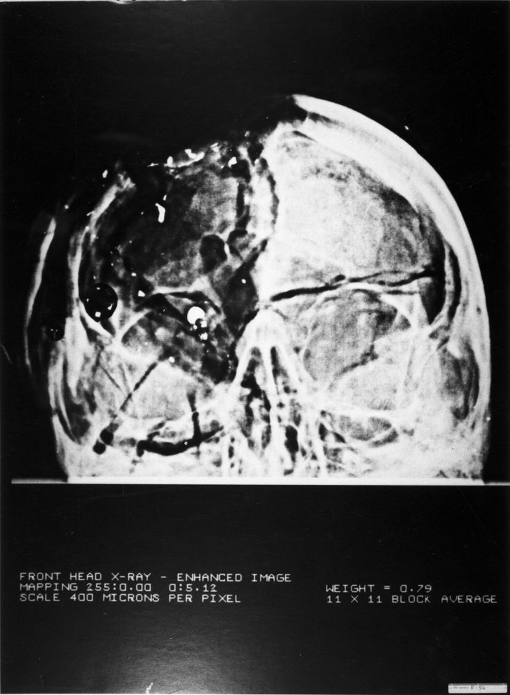 Kennedy Anterior/Posterior X-Ray from Autopsy